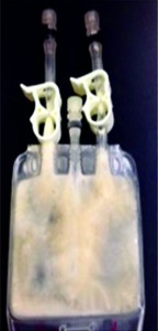 (photo) a 30-mL Celsius bag containing MAb-C BDS at 120 mg/mL after being subjected to controlled fast-freezing protocol using liquid nitrogen