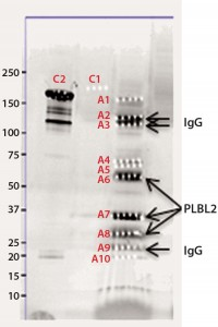 Figure 2b: Chromatographic separation of CHOP impurities from the product; CHOP- positive fractions 8–20 were pooled, concentrated, and analyzed on a sodium- dodecyl sulfate polyacrylamide gel electrophoresis (SDS-PAGE) gel.