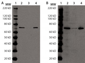 Figure 4: Immunoprecipitation of Hsp70 in DS; for (a) and (b), equal volumes of DS sample (lane 2), Hsp70 immunoprecipitation supernatant (lane 3), and Hsp70 immunoprecipitation eluate (lane 4) were denatured, reduced, and loaded onto two 4–12% SDS-PAGE gels in parallel. Lane 1 is a Magic Marker molecular weight (MW) marker from Bio-Rad Laboratories.