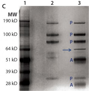 "Both gels were transferred to nitrocellulose membranes and probed with anti-Hsp70 antibody (a) or anti-HEK HCP antibody (b). For immunoprecipitation of HEK HCP in DS (c), the same amount of DS was incubated with streptavidin beads either with (lane 3) or without (lane 2) a biotinylated anti-HEK HCP antibody. Proteins bound to the beads were eluted in acidic buffer and resolved by SDS-PAGE, then the gel was silver stained and product bands identified with a label ""P"" and anti-HEK HCP antibody bands (heavy chain and light chain) with a label ""A."" The unique HCP band around 70 kDa is marked by an arrow."