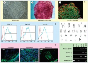 Figure 2: Human iPSCs generated using a feeder-dependent system during proof-of-principle stage (stage 1); (a) an iPSC colony positively stained with alkaline phosphatase (AP) and iPSCs expressing pluripotency markers OCT4 and TRA-1-60 (b) iPSCs expressing the pluripotent stem cell surface markers SSEA4, TRA-1-60, and TRA-1-81 (blue) with an isotype control (red); (c) iPSCs demonstrated normal karyotype after 10 passages; (d) iPSCs differentiated into embryoid bodies and readily expressing the markers for early ectoderm (TUJ1), endoderm (alpha-feto protein, AFP), and mesoderm (smooth muscle actin, SMA); (e) semiqualified PCR analysis of the iPSC sample exhibited plasmid clearance at P6. The top row shows plasmid (if applicable) or genomic DNA purified from different samples: iPSCs generated on feeders, water, human embryonic stem cells (H1), pEB-C5 plasmid, pEB-Tg plasmid, and CD34+ cells four days after nucleofection with pEB-C5 and pEB-Tg plasmids. Vertical column from top to bottom shows primers for EBNA1 vector, pEB-Tg, pEB- C5 (SK), and reference (actin). Scale bar in all images is 250 µm, except for (d) 125 µm.