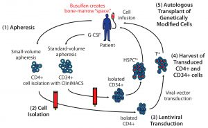 "Figure 1: A cell-delivered gene therapy process begins with (1) apheresis, in which granulocyte colony stimulating factor (G-CSF) is administered to stimulate production of stem cells and their release into blood. Small-volume apheresis is taken for CD4+ T-cell isolation, and larger volumes are taken for CD34+ hematopoietic stem progenitor cells (HSPCs). After (2) a cell isolation step to purify the desired cell populations (T cells or HSPCs), purified cells are transduced with a therapeutic lentiviral vector (3). Following harvest of transduced T cells and HSPCs (4), modified cells are collected and cryopreserved. Finally (5), genetically modified autologous cells are transplanted back to the same patient. Busulfan chemotherapy is administered before transplantation to create ""space"" in the patient's bone marrow for the therapeutically modified cells."