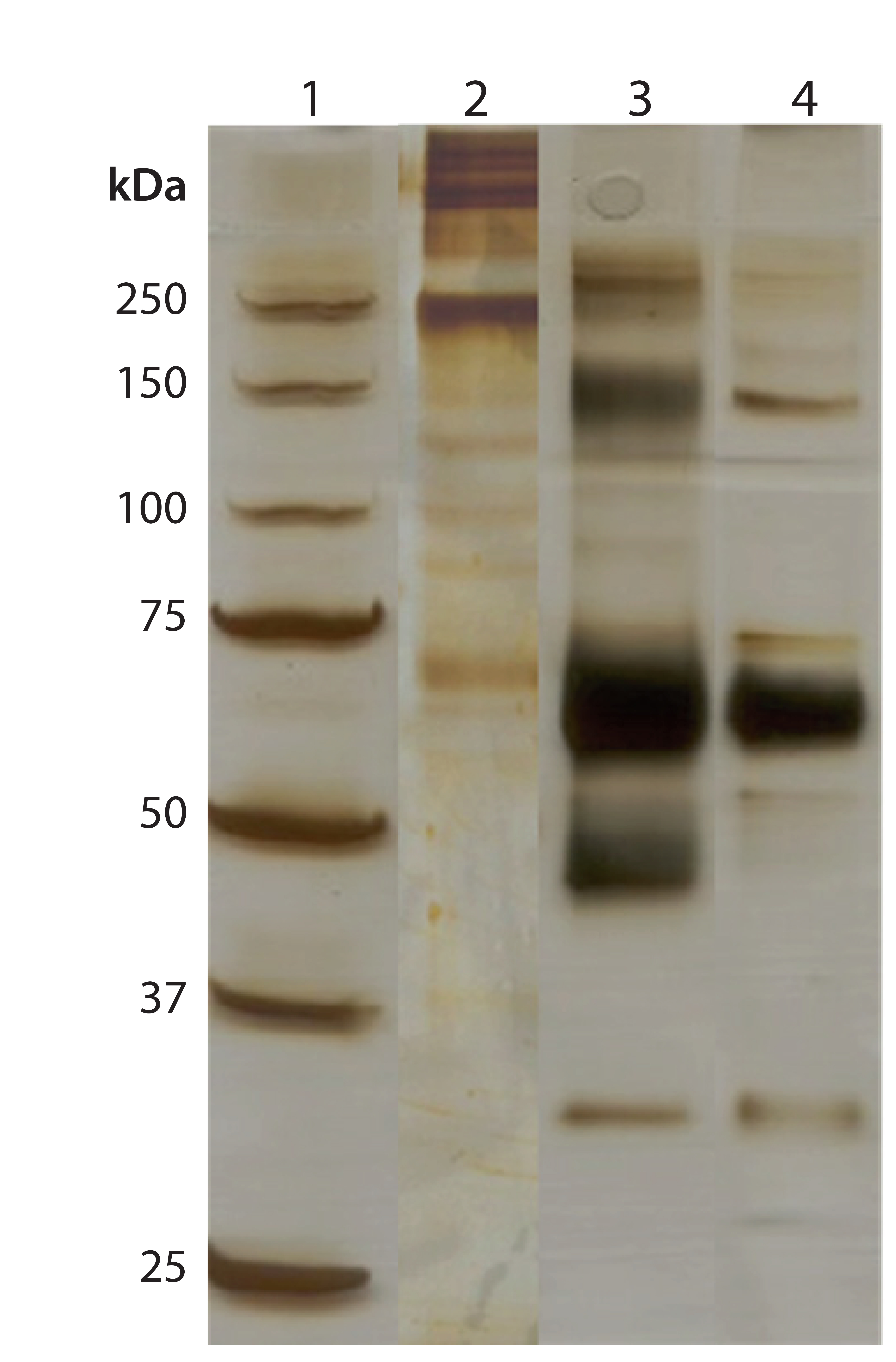 Large-Scale Purification of Factor-IX: Comparing Two